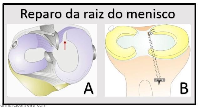 raiz do menisco, Tratamento da lesão da raiz do menisco, Dr. Márcio Silveira: Especialista em Joelho, com foco em Idoso e Esportiva